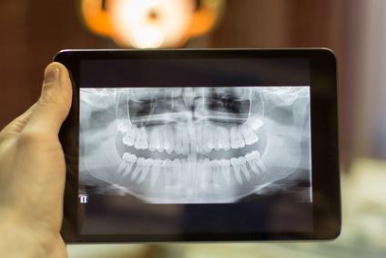 Zahnkorrekturen